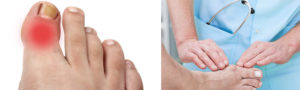 Артрит пальцев ног: лечение