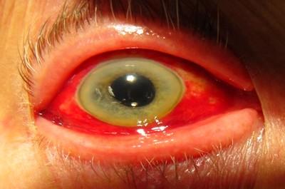 Геморрагические лихорадки (симптомы, лечение)