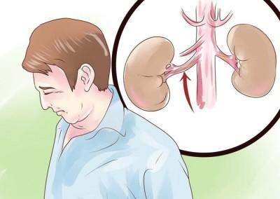 Стеноз почечной артерии – симптомы и последствия