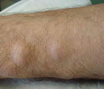 Уплотнение на ноге в виде шишки: причины, тревожные симптомы и особенности лечения
