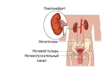 Симптомы боли в почках фото