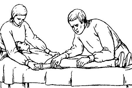 Удерживание пациента в период возбуждения масочного наркоза