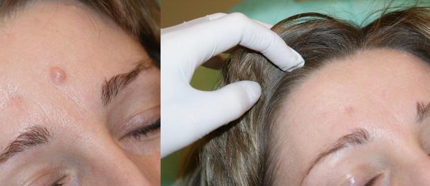 Радиоволновой метод удаления бородавок