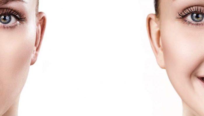 Как ухаживать за комбинированной кожей лица? Полезные советы и правильные средства