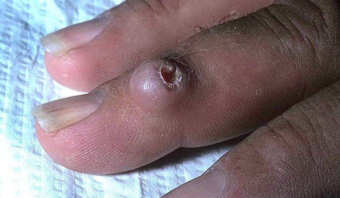 Фиброма на пальцах руки