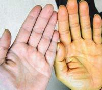 Пожелтение кожных покровов, как признак болезни