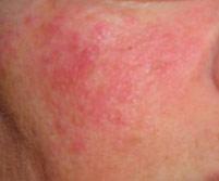 Основные причины появления раздражения на коже лица