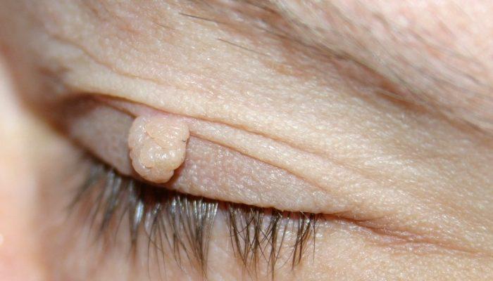 Фиброма: мягкая, десмоидная, хондромиксоидная и твердая