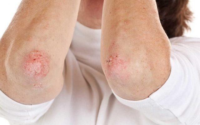 Что означает сыпь на локтях и коленях? Простые ответы на сложные вопросы
