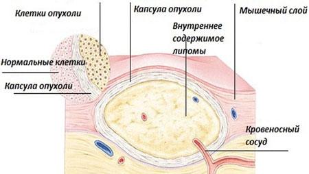 Как выглядит липома под кожей