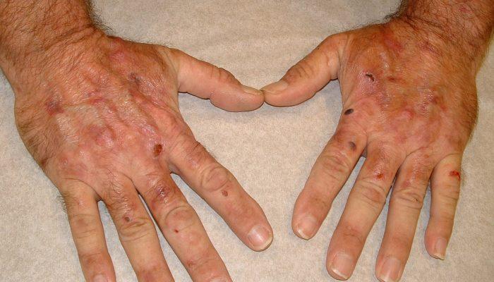Причины желтого и коричневого цвета лица: проводим своевременную диагностику