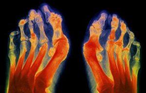 Диагностика артрита стопы