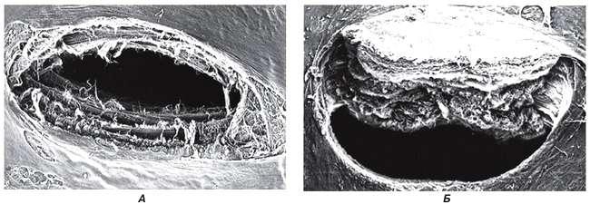 Поперечный срез твердой мозговой оболочки после пункции иглами различного типа