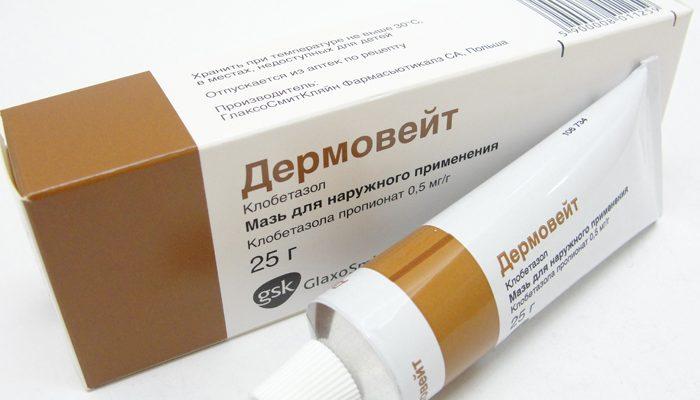 Крапивница на коже: мази для лечения