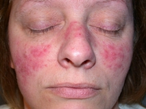 Симптомы и лечение подкожного клеща на лице (демодекоза)