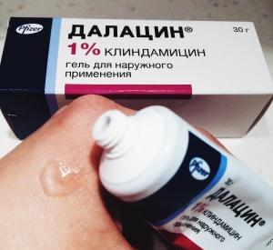 особенности применения препарата Далацин