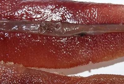 Как выглядят черви анизакиды в селедке: фото