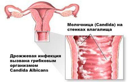 Что такое кандидоз (молочница): причины возникновения, симптомы