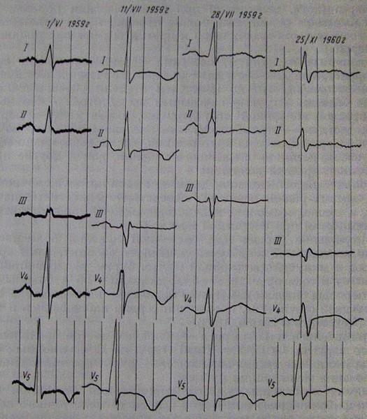 Электрокардиограмма больного с волчаночным миокардитом