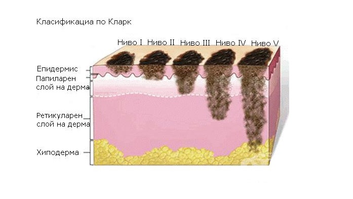Сколько развивается меланома?