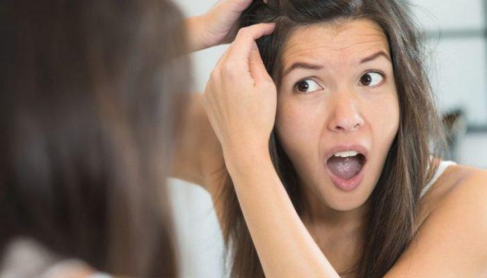 Как приготовить маску для волос от перхоти? Наиболее эффективные способы