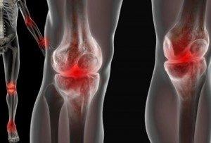 Реактивный полиартрит: причины возникновения