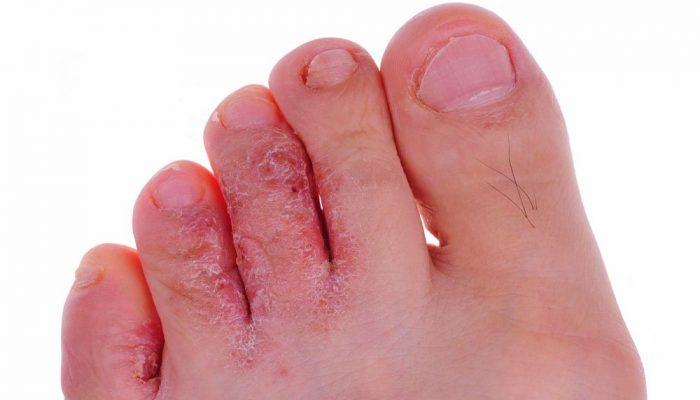 Избавляемся от грибка между пальцами ног быстро и эффективно: лучшие препараты и способы победить микоз