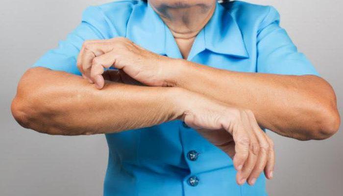 Почему возникает зуд кожи тела у пожилых людей? Причины старческого дерматита, а также эффективные методы лечения