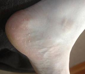 Описание болезней, как причин шелушения кожи на ступнях ног
