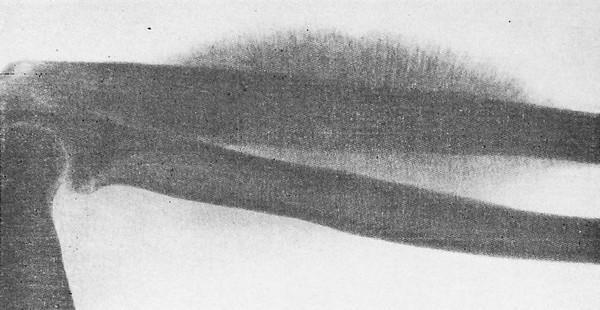 Саркома Юинга локтевой кости (гистологическое подтверждение)