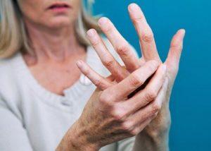 Как предотвратить артрит