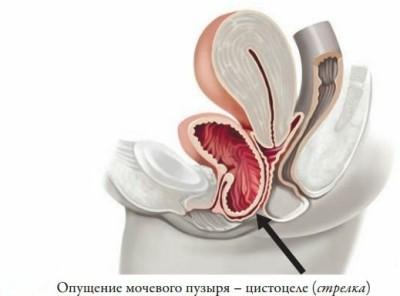 Причины образования опущения мочевого пузыря и стадии болезни