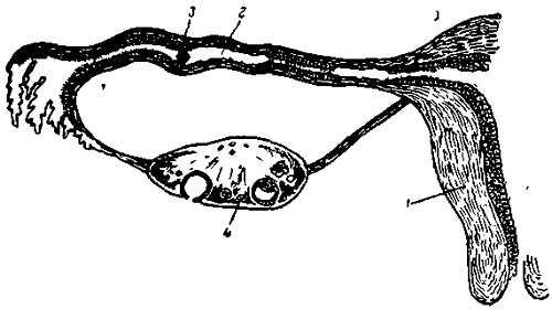 Труба с частично поврежденной слизистой оболочкой