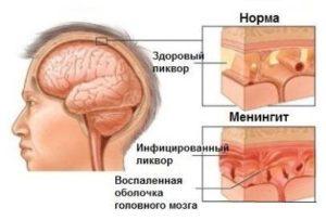 Что такое менингиальная инфекция?