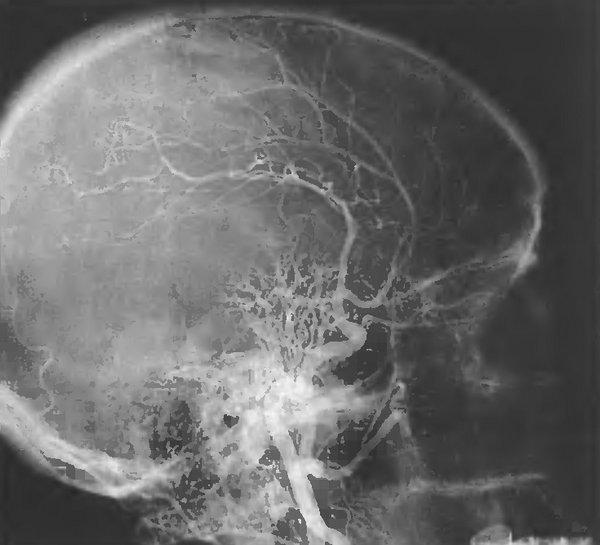 Ангиограмма больной с менингиомой средней черепной ямки