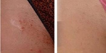 Что делать при раздражении после бритья в зоне бикини