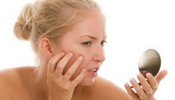 Что означают красные пятна на лице у ребенка? Основные причины симптома у новорожденного и подростков