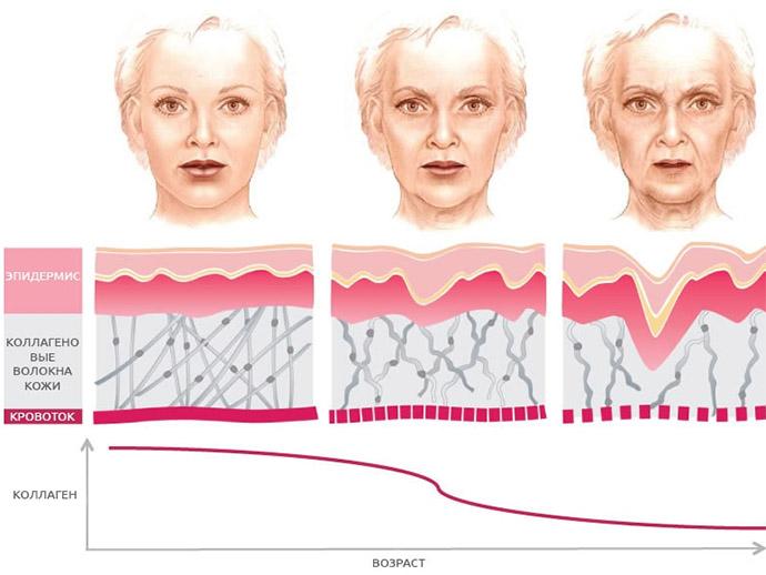 Возрастные изменения кожи: причины, проявления и профилактика