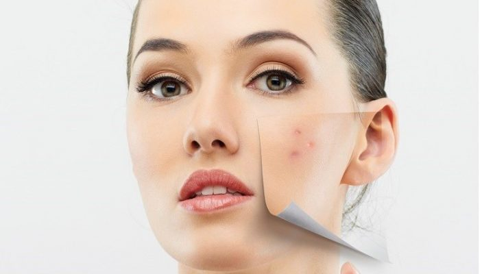 Дефекты, недостатки и несовершенства кожи