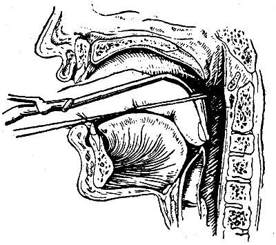Шелковые нити на интубационной трубке