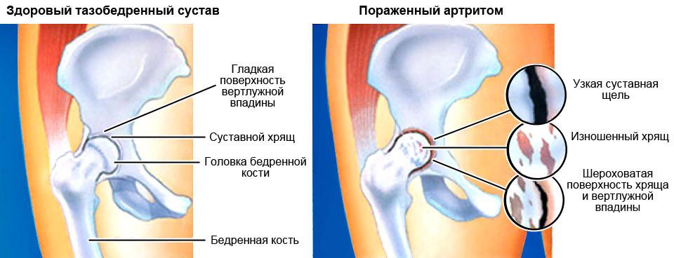 Артрит тазобедренного сустава: симптомы и причины возникновения