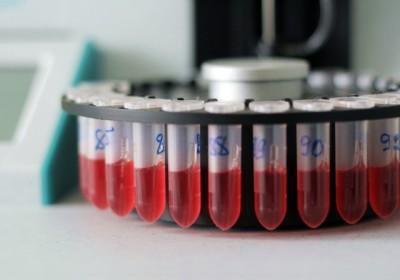 Глюкозурия – на почве чего появляется