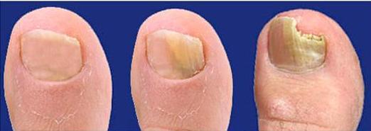 Как начинается грибок ногтей на ногах: симптомы и фото