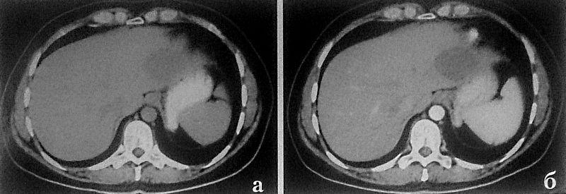 Альвеококк печени на МРТ
