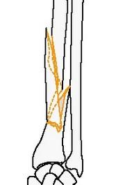 Клиновидный перелом лучевой кости, локтевая интактна