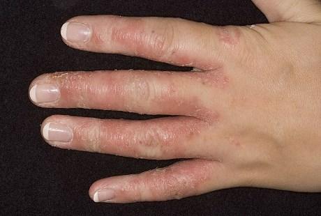 Как выглядит грибок на руках: фото