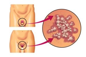 генитальный герпес как причина появления прыщей на интимных местах