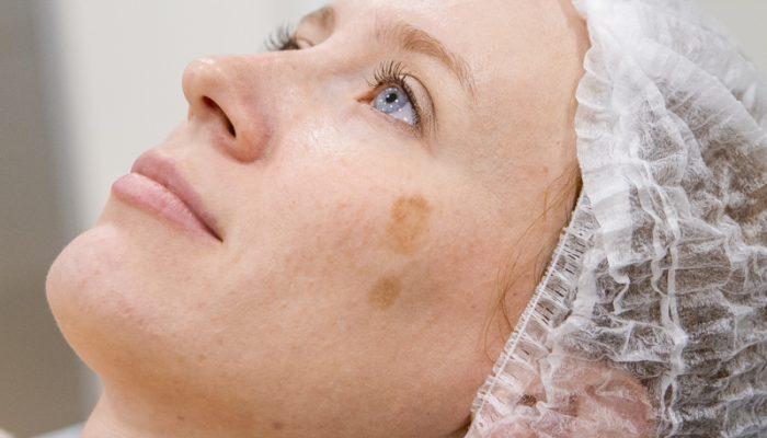 Лазерное удаление пигментных пятен на лице