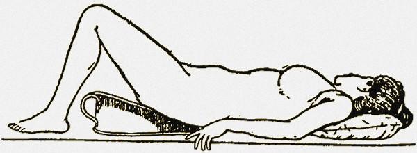 Фото положения больной при спринцевании влагалища