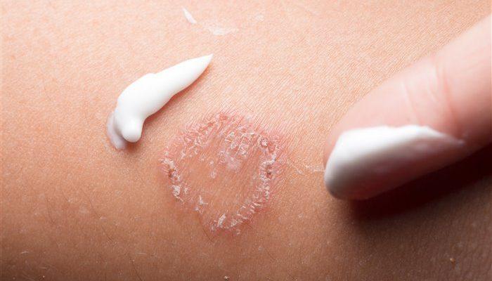 Грибковый дерматит: лечение